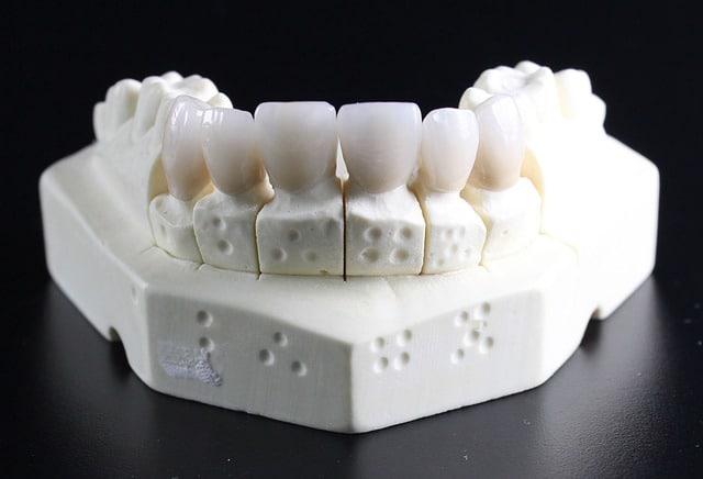 Assurance orthodontie