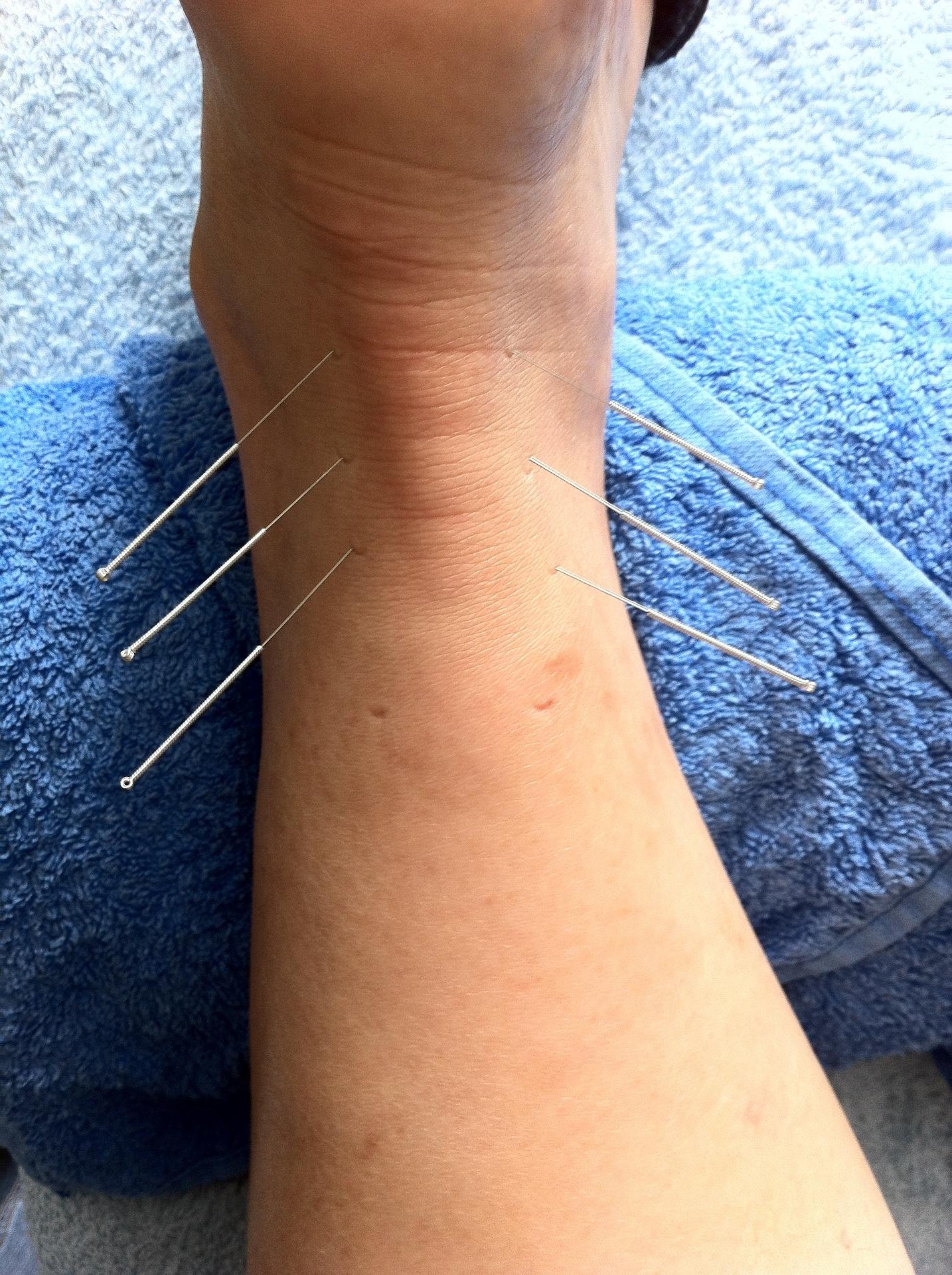 Acupuncteurs