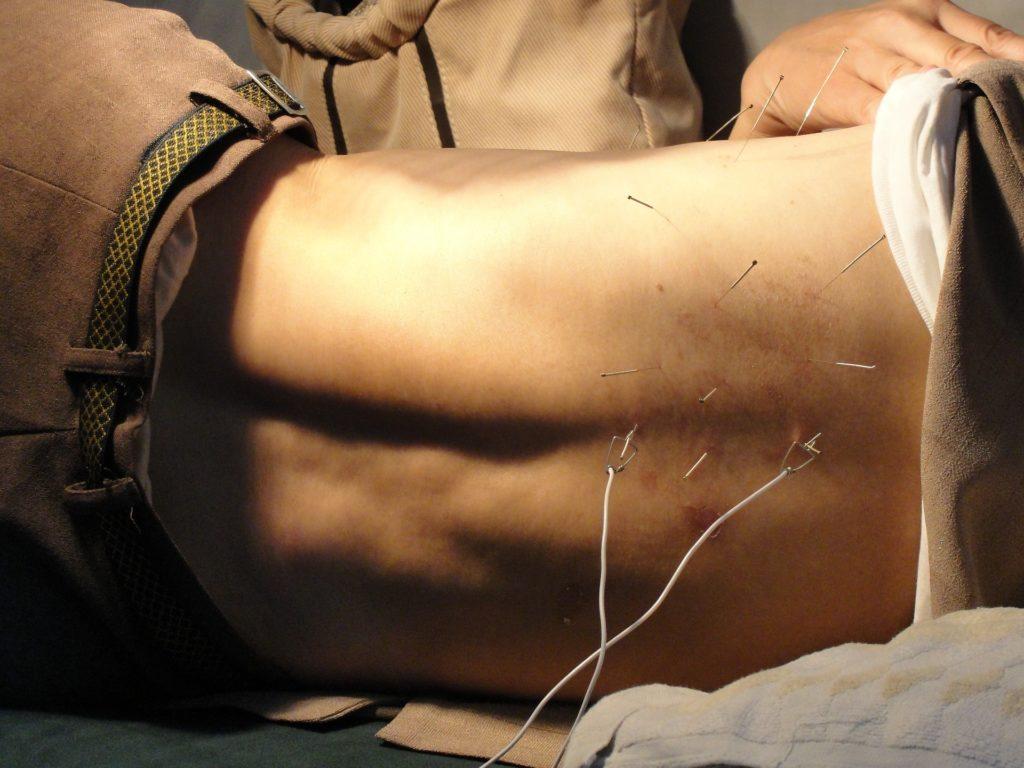 Acupuncteurs à Fleurier